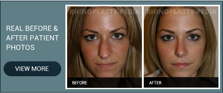 rhinoplasty consultation in New York female patient before and after photo
