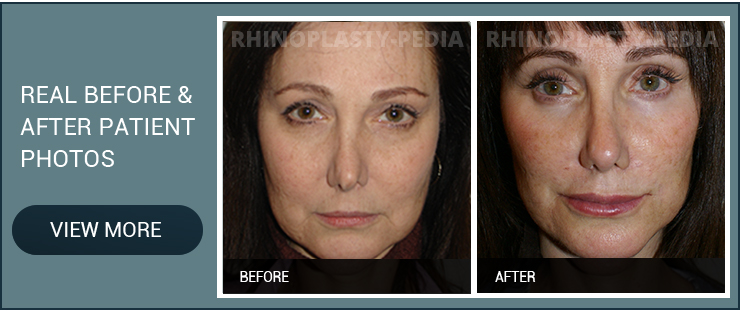 3D high definition rhinoplasty female patient before and after photo