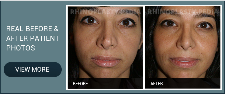 open rhinoplasty patient before and after photo
