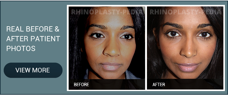 closed rhinoplasty female patient before and after photo