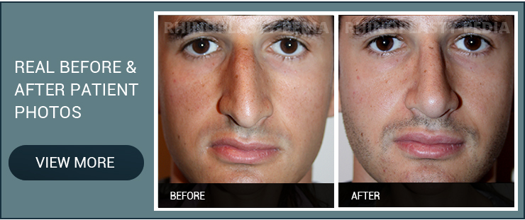 rhinoplasty for a broken nose real before and after male patient photo