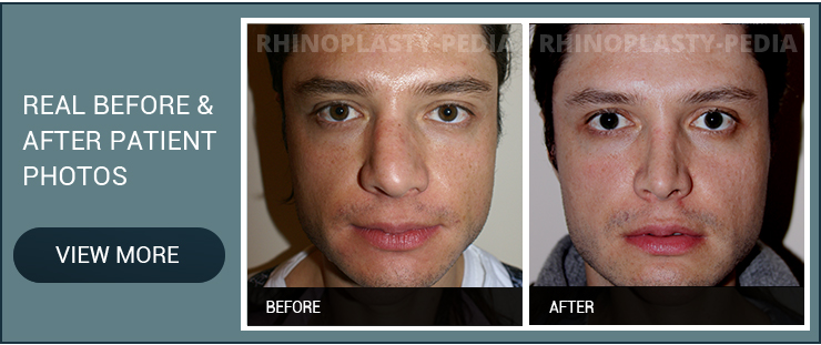 rhinoplasty for nasal reconstruction male patient before and after photo