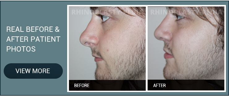 nasal obstruction real before and after male patient photo