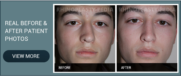 endoscopic sinus surgery before and after patient photo