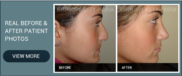 rhinoplasty combined with chin implant female before and after patient photo