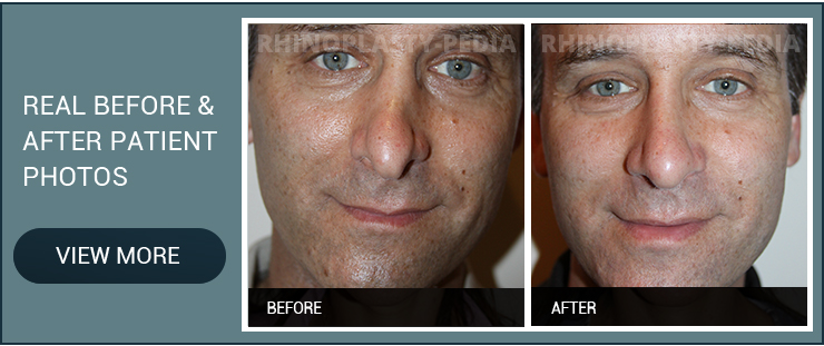 rhinoplasty combined with facelift male before and after patient photo