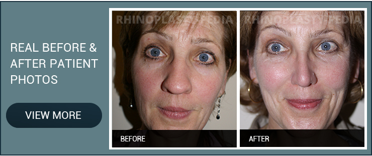 rhinoplasty combined with Laser for Winkles and skin tightening before and after female patient photo