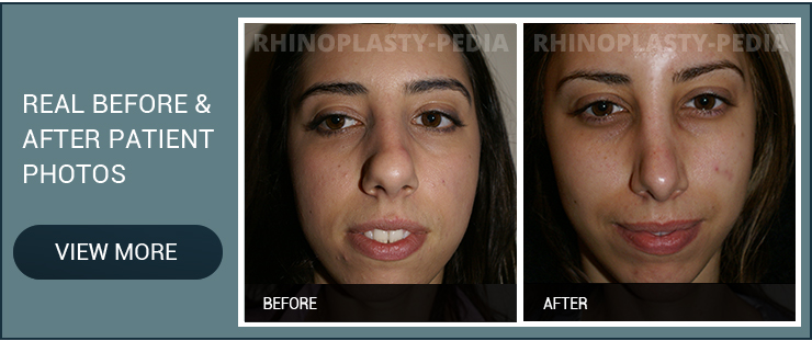 rhinoplasty combined with Septoplasty female patient before and after photo