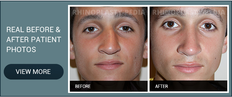 rhinoplasty combined with sinus surgery male patient before and after photo