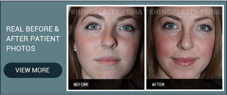 caucasian rhinoplasty female patient before and after photo
