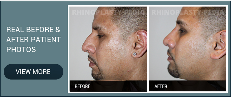 latino and hispanic rhinoplasty male patient before and after photo