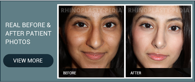 before a rhinoplasty patient before and after photo