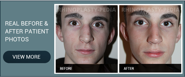 revision rhinoplasty surgeons male patient before and after photo