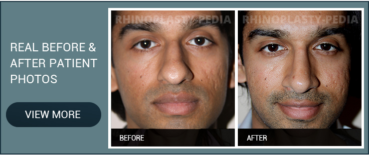 finding a septal perforation surgeon male patient before and after photo