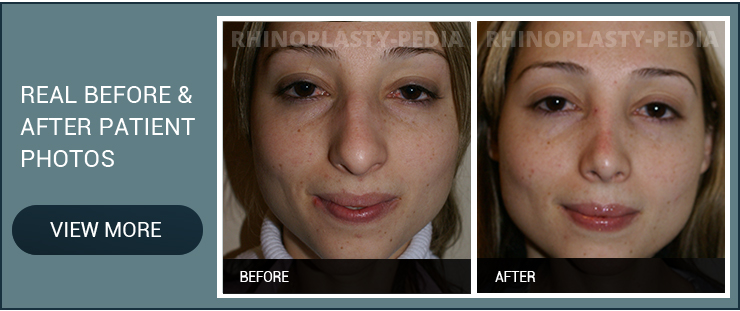 rhinoplasty recovery female patient before and after photo