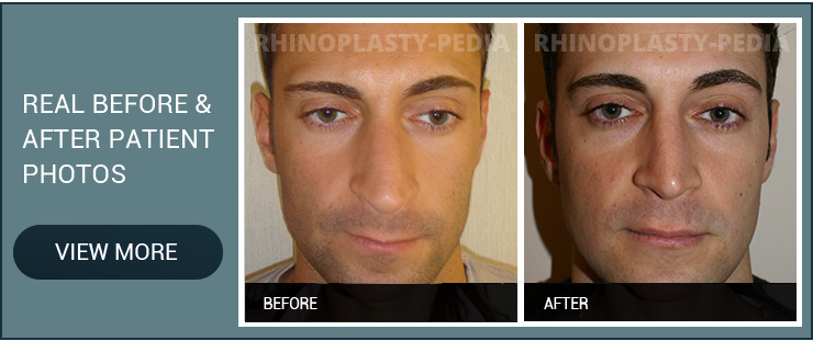 sinus surgery real before and after male patient photo