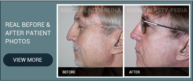sinus surgery recovery before and after male patient photo