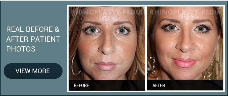 the day of rhinoplasty surgery female patient before and after photo