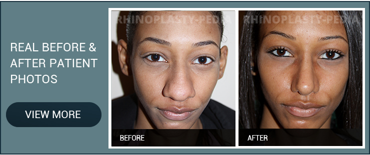 rhinoplasty complications female patient before and after photo