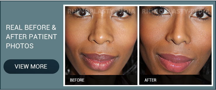 rhinoplasty candidate female patient before and after photo