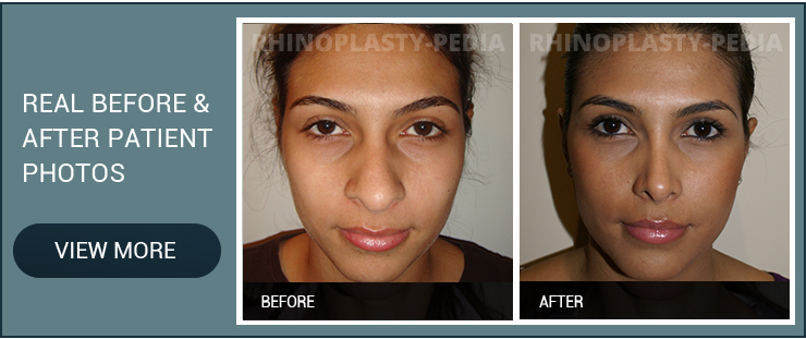 female rhinoplasty patient before and after photo