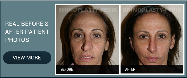 best rhinoplasty surgeon patient before and after photo banner