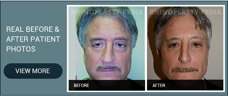rhinoplasty surgeon Dr. Sam Rizk patient before and after photo banner