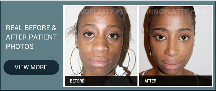 african american rhinoplasty patient before after photo banner