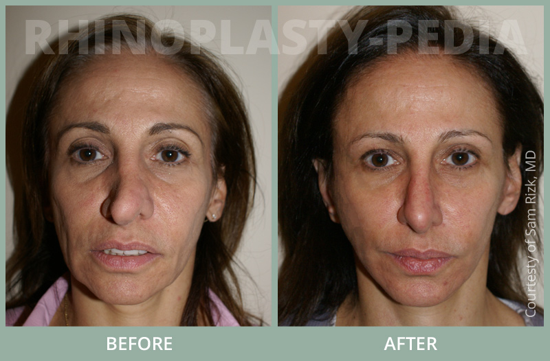 female rhinoplasty patient before and after photo 2
