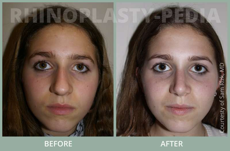 female rhinoplasty patient before and after photo 7