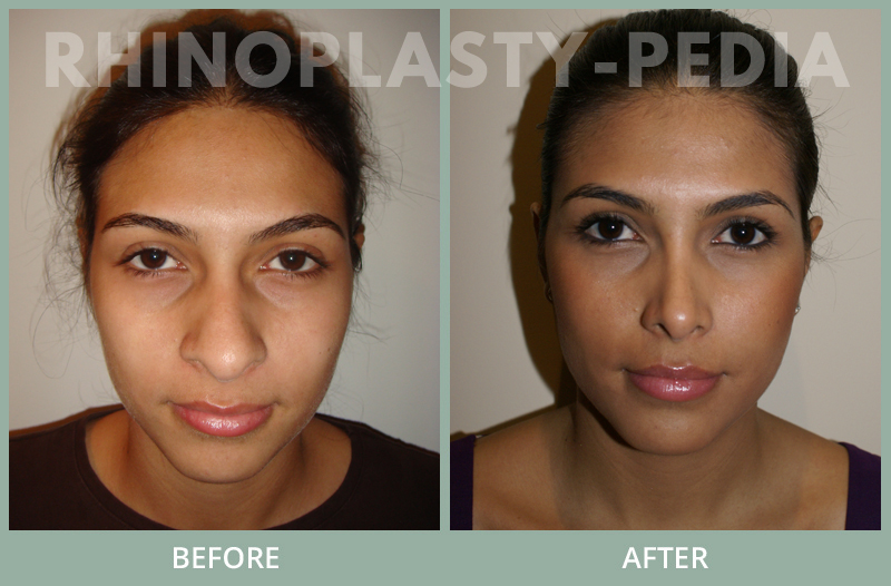 rhinoplasty female patient before and after photo set 19