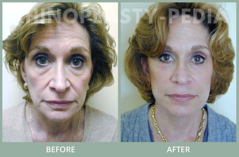 female rhinoplasty patient before and after photo 11
