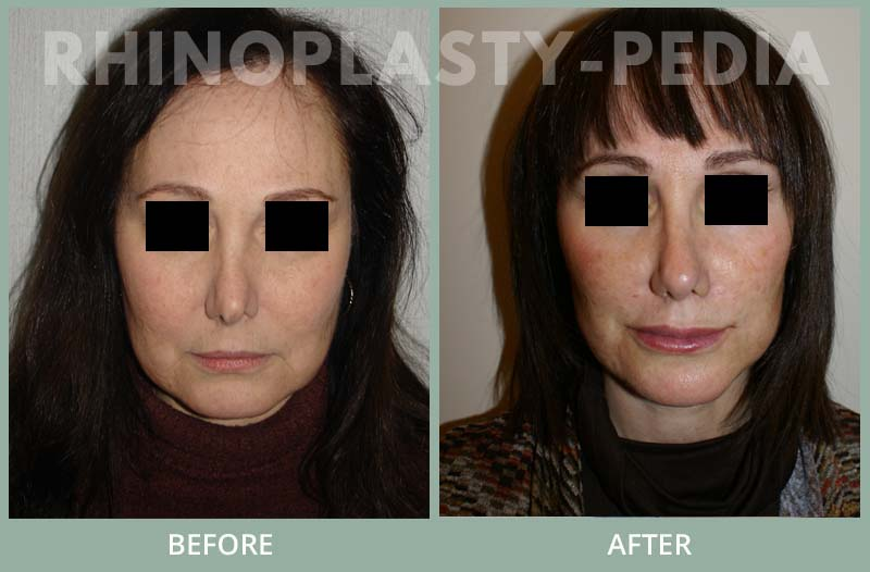 female rhinoplasty patient before and after photo 14