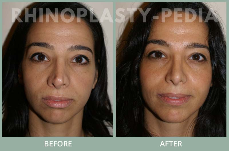 female rhinoplasty patient before and after photo 19