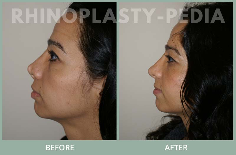 rhinoplasty female patient before and after photo set 85