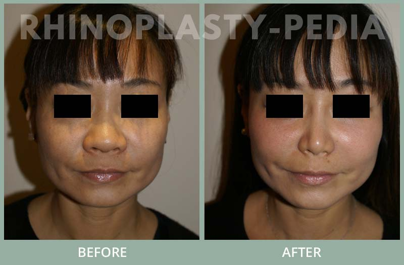rhinoplasty female patient before and after photo set 87
