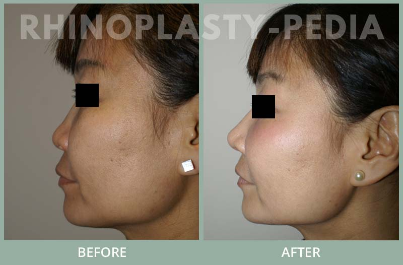 rhinoplasty female patient before and after photo set 86