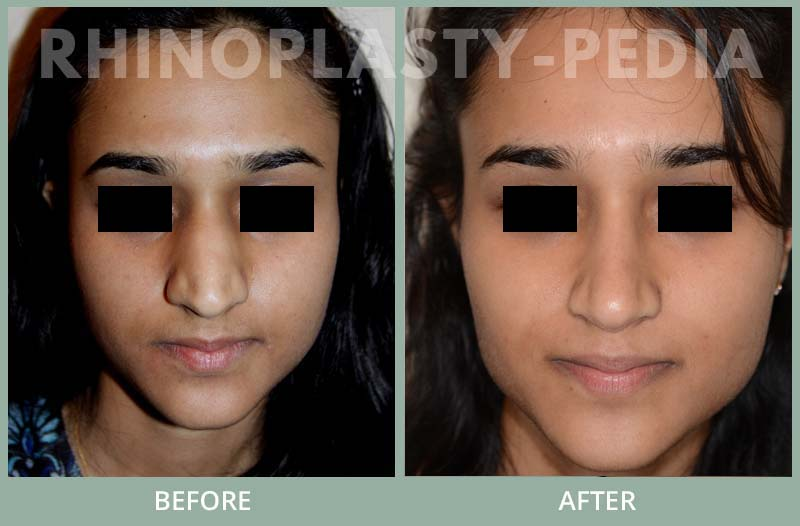 rhinoplasty female patient before and after photo set 88