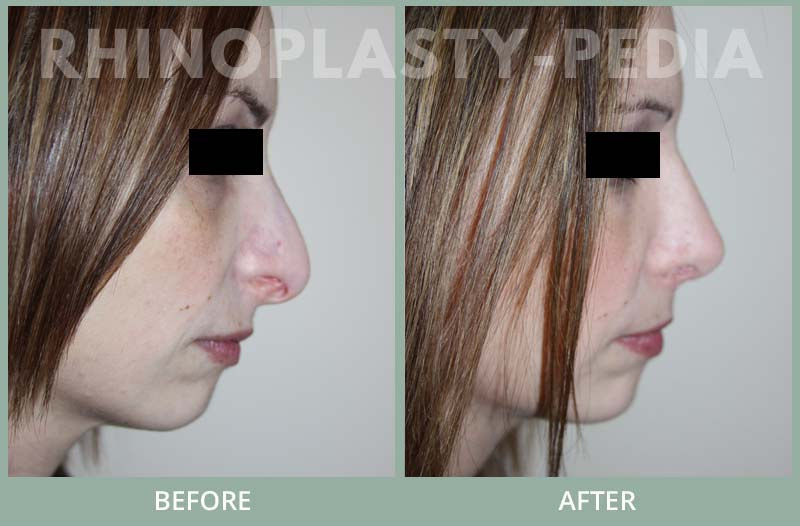 rhinoplasty female patient before and after photo set 90