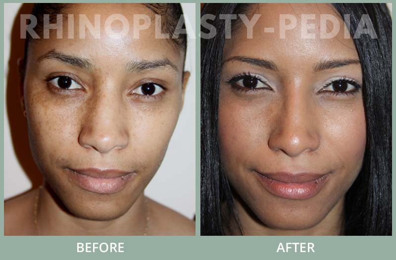 female rhinoplasty patient before and after photo 27