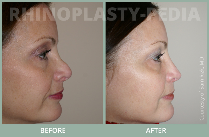 rhinoplasty female patient before and after photo set 65