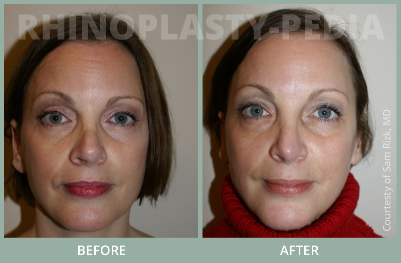 rhinoplasty female patient before and after photo set 66