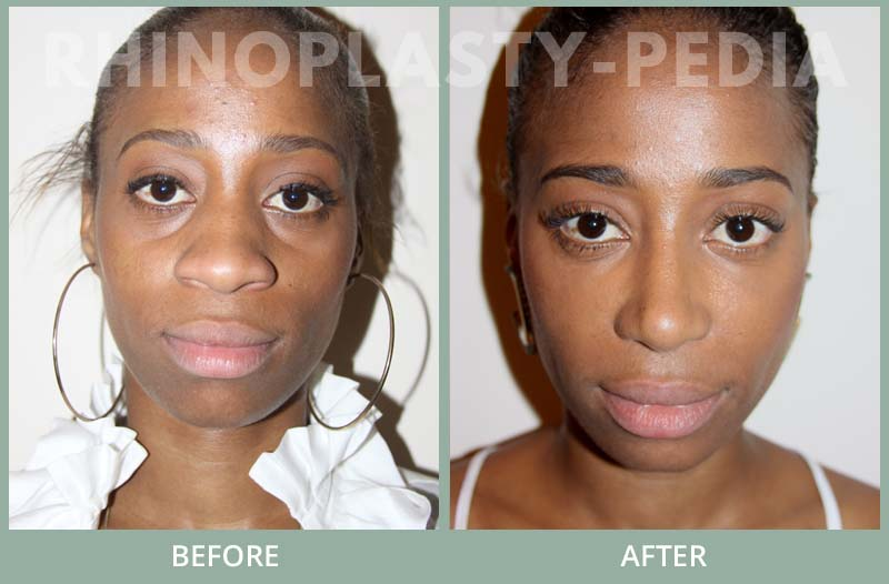 female rhinoplasty patient before and after photo 28