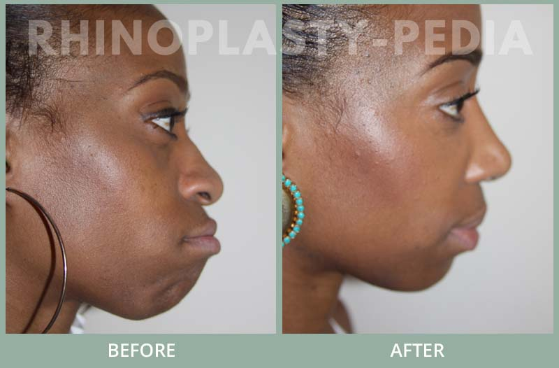 rhinoplasty female patient before and after photo set 93
