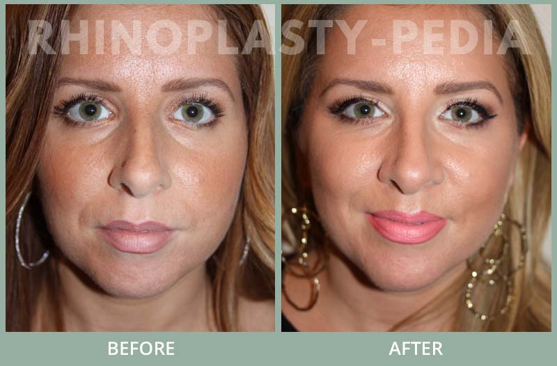 female rhinoplasty patient before and after photo 30