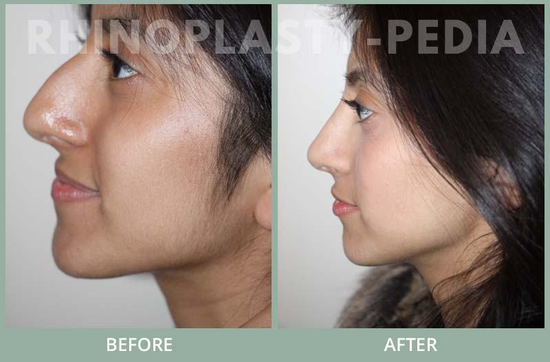 rhinoplasty female patient before and after photo set 97