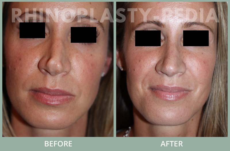 female rhinoplasty patient before and after photo 33