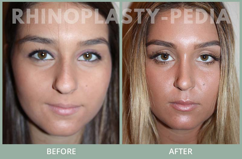 female rhinoplasty patient before and after photo 31