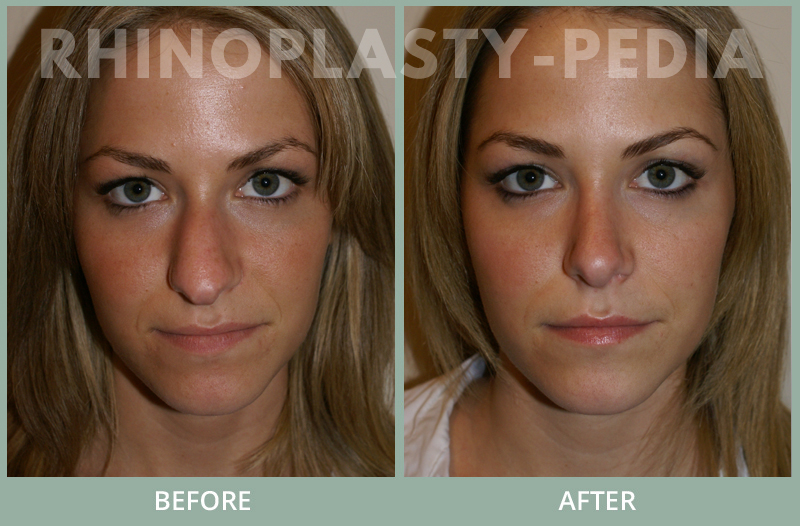 female rhinoplasty patient before and after photo 15