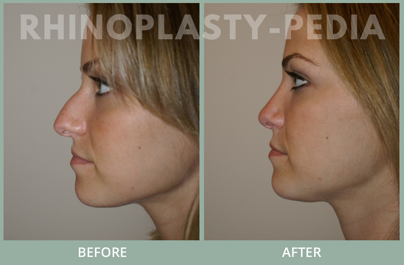 rhinoplasty female patient before and after photo set 103